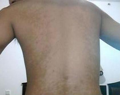 背部发生白癜风怎么护理