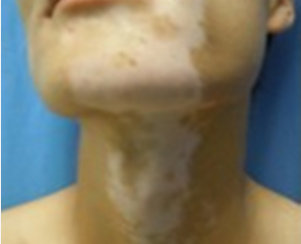 怎么辅助治疗脖子上的白癜风