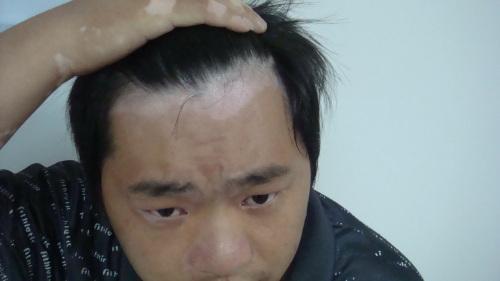 北京市白癜风专治医院:男性白癜风的危害表现